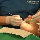 歯周病とオーラルケアの画像